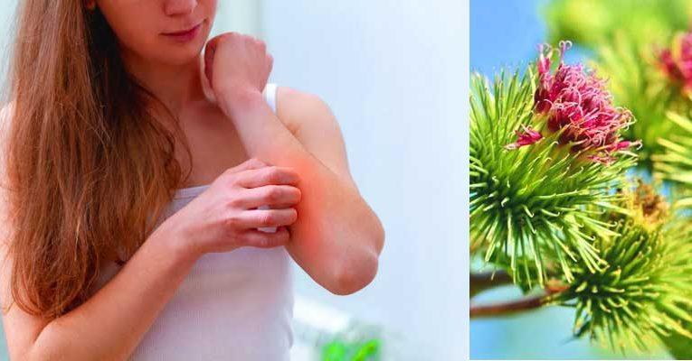Remedios Naturales para la Psoriasis. Alimentos y plantas