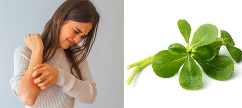 Remedios Naturales para la Urticaria