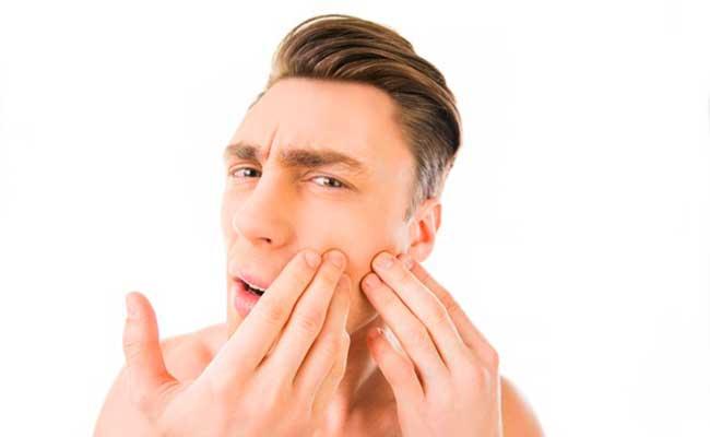 Remedios para el acné y los forúnculos